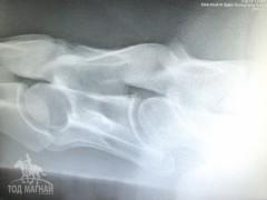Хүзүүний нугаламны байдлыг харуулсан рентген