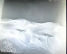 Хүзүүний нугаламны байдлыг харуулсан рентген зураг